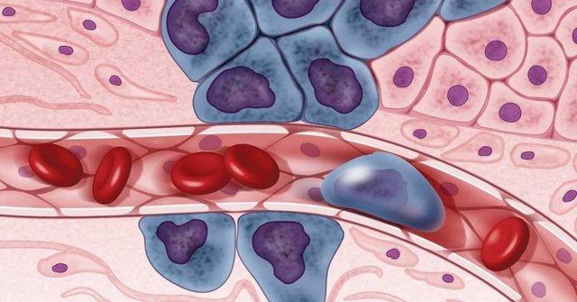 کشف روش جدید نابودی سلول های سرطانی مقاوم به درمان