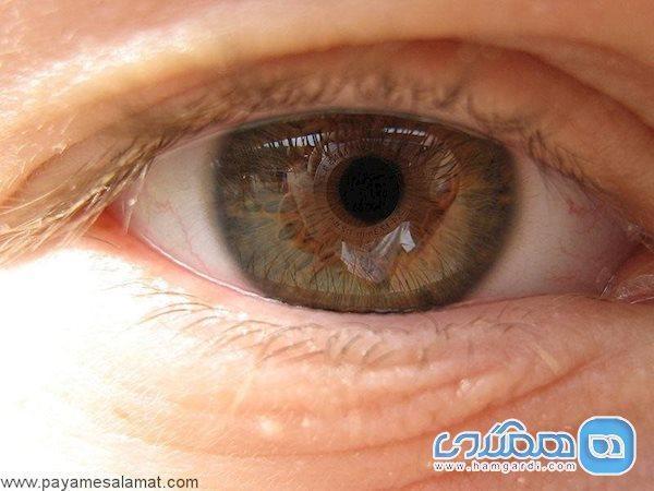 ورزش کنید تا به این بیماری چشمی مبتلا نشوید!