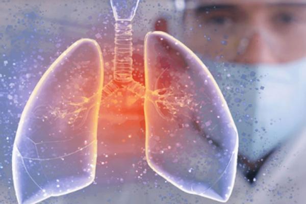 آیا ممکن است ریه ها بدون علائم درگیر کرونا شوند؟